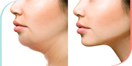 Kybella Treatment in Beverly Hills, Hollywood & Greater Los Angeles CA