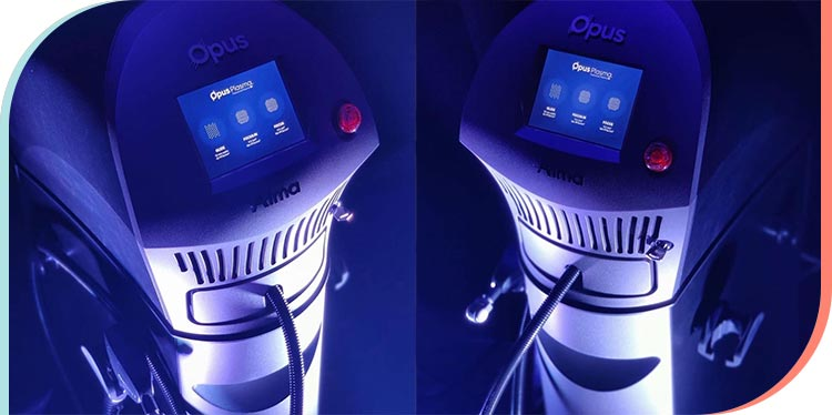 Opus Plasma Specialist in Beverly Hills, Hollywood, and Greater Los Angeles CA